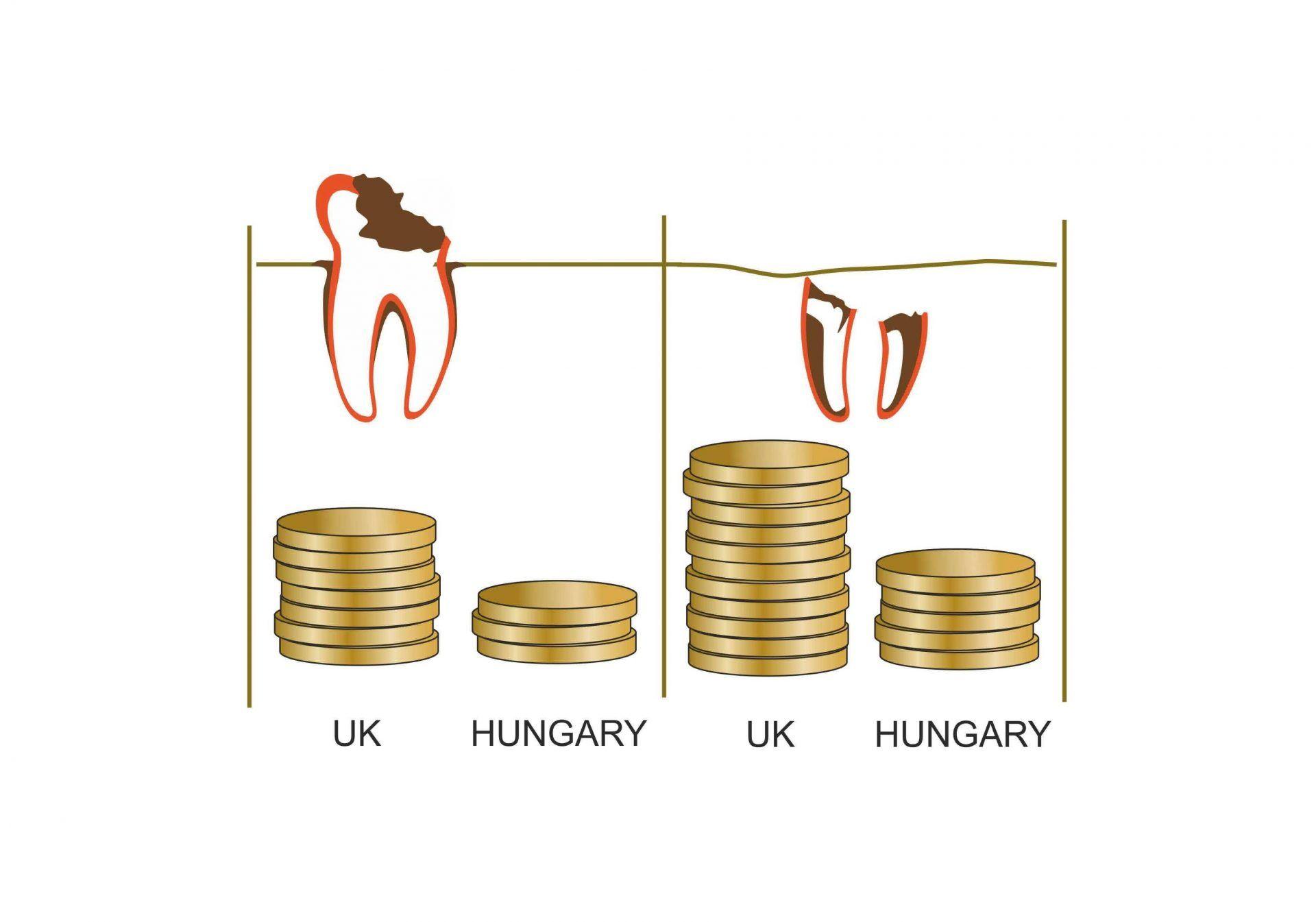 dental-treatment-price-budapest-hungary